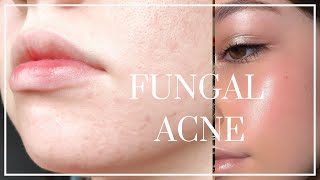 How to Get Rid of Fungal Acne // BEAT TINY BUMPS