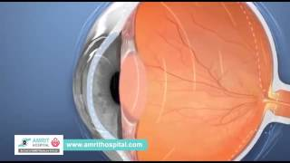 Lasik Eye Treatment Chennai