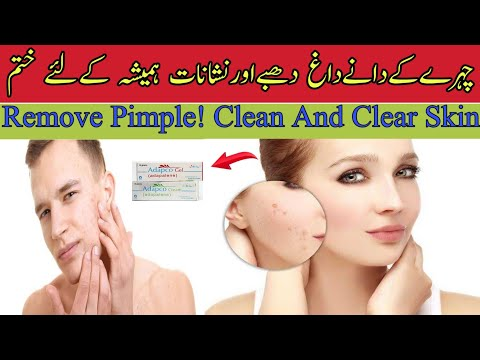 Acne Treatment In Urdu Hindi Acne Scars Blackheads Whiteheads