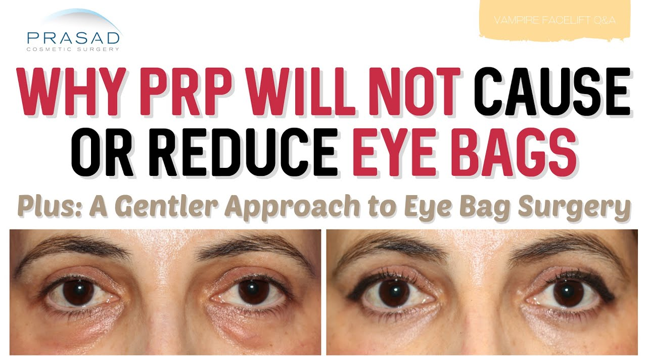 how to remove fine lines under eyes at home