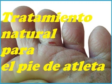 ELIMINAR LOS HONGOS EN LOS PIES. Eliminate the FUNGI IN THE FEET.