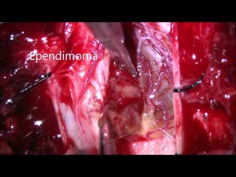 Ependimoma dorsal