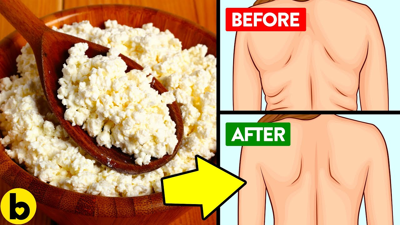 7 Surprising Health Benefits Of Cottage Cheese That Will Make You Love It