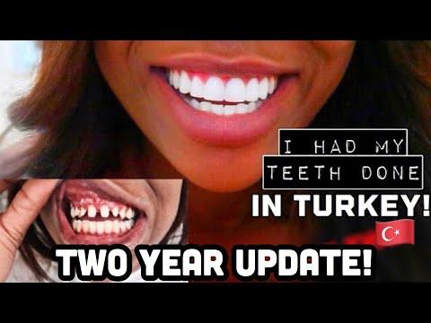 I HAD MY TEETH DONE IN TURKEY! TWO YEAR UPDATE - REGRETS?!