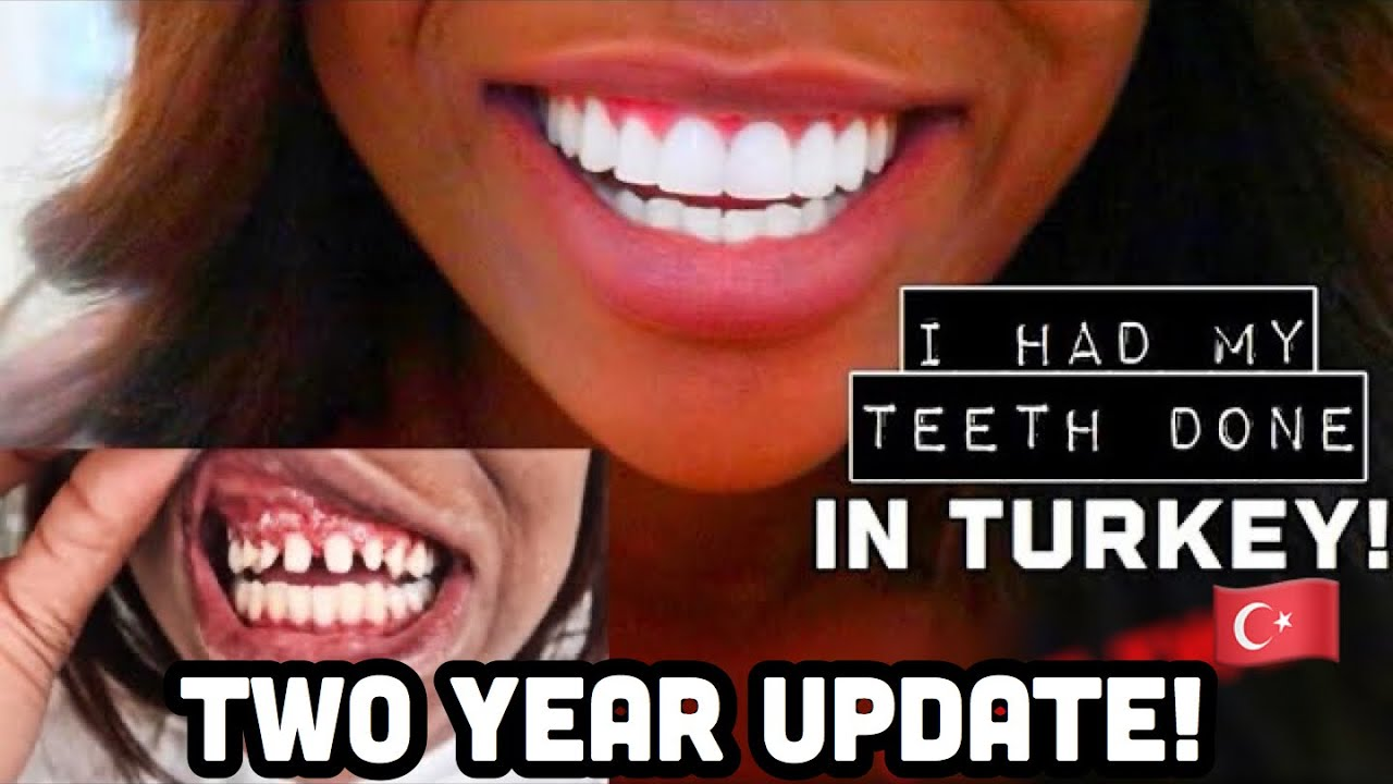 I Had My Teeth Done In Turkey Final Results Costs Youtube