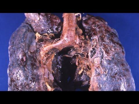 Пороки развития легких - причины, симптомы, диагностика и