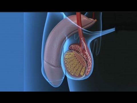 Лечение водянки яичка