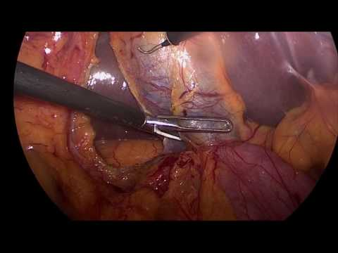 Critical View of Safety achievement during Laparoscopic Chol