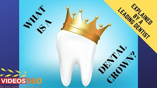 Now Trending - What is a dental crown? – Dr. Jameela Jiffri near Mississauga, ON