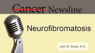 Neuroma Akustik, Tumor Jinak yang Tumbuh pada Saraf yang Hubungkan Bagian Dalam Telinga dengan Otak.