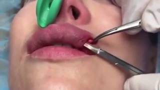 Червь в губах