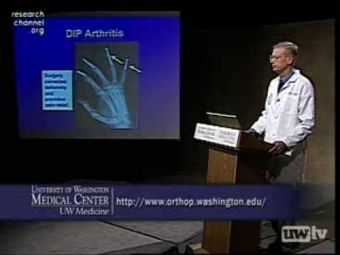 Hand and Wrist Arthritis
