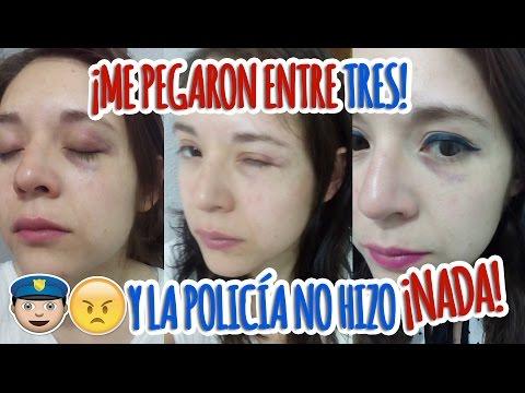 ME GOLPEARON ENTRE 3 MUJERES Y LA POLICÍA NO HIZO NADA 😠😡 #StoryTime #NoALaViolenciaContraLaMujer
