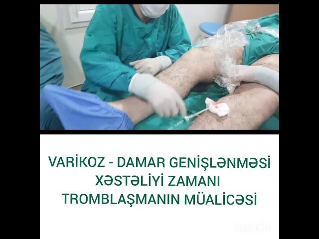 tratamentul cu varicoză al tromboflebitei