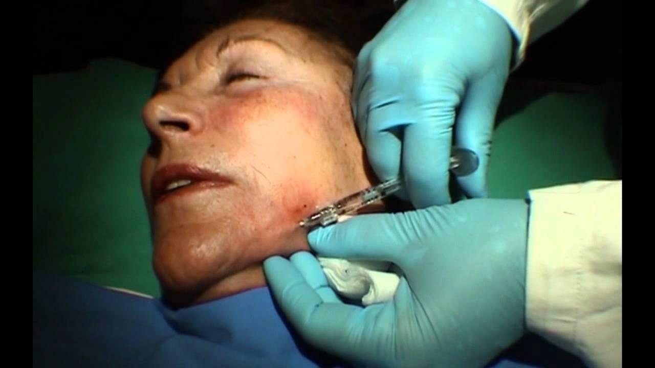 Grata varicosa su un fianco