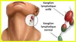 Causes de l'inflammation des ganglions lymphatiques