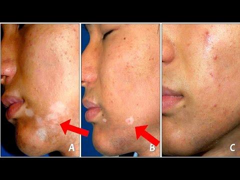 Vitiligo Cream - Best Vitiligo Treatment That Works 100%