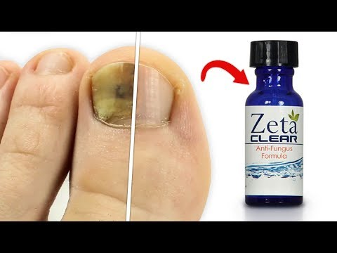 ZetaClear Reviews | Does It REALLY Work As A Permanent Solution To Nail Fungus?