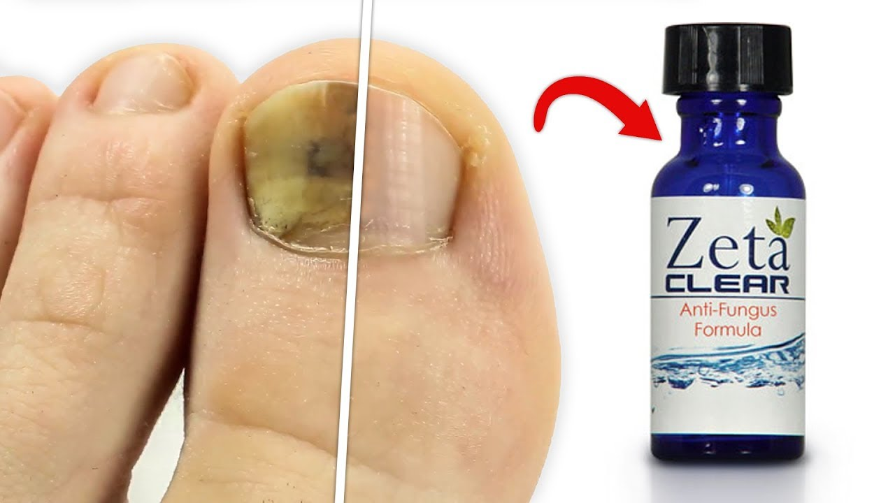Zetaclear Reviews Does It Really Work As A Permanent Solution To