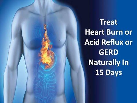 How to Treat Heart Burn/Acid Refux/Gerd in 15 Days – Heart Burn Remedies