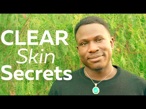 How to Get Clear Skin (WARNING - this video will change your life)