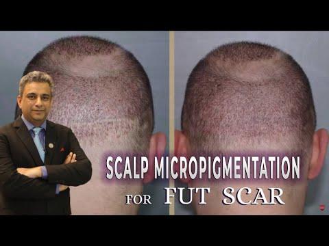 Scalp Micropigmentation for a Bad FUT Strip Scar at Saraswat Hospital, India