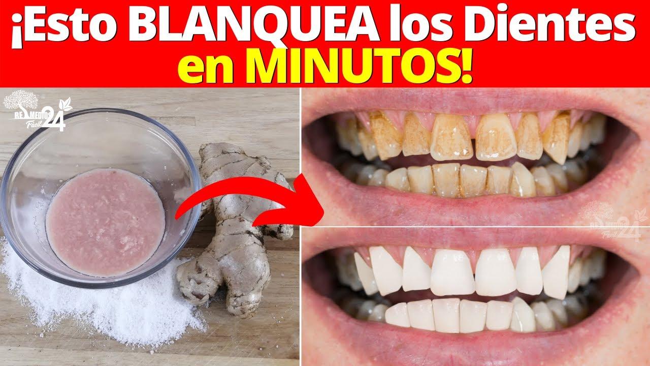 ¡Mira Como BLANQUEAR los dientes en MINUTOS! con este Remedio Casero