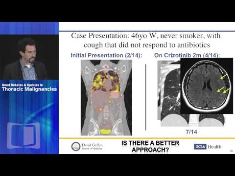 DEBATE: ALK positive NSCLC - Front line therapy - Ceritinib