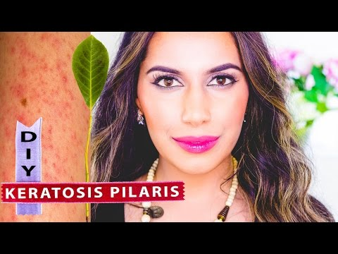DIY Keratosis Pilaris Treatment | Himani Wright (Ayurvedic Home Remedies) Gharshana Gloves Raw Silk
