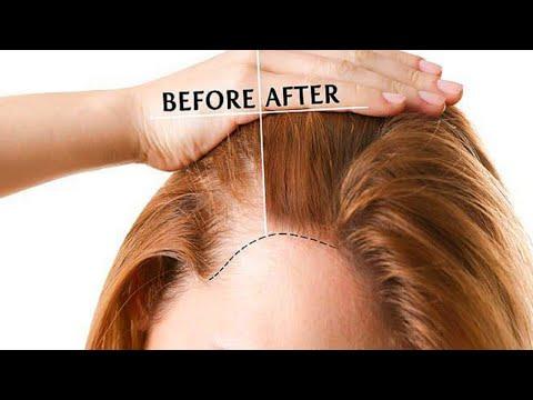 """hair-fall:-cure-""""baldness""""-grow-hair-long-&-fast-(men-&-women)"""