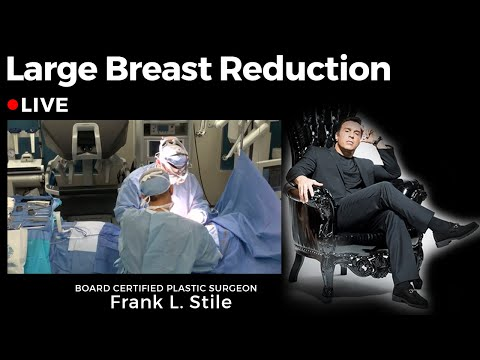 Large Breast Reduction \u0026 Symptomatic Macromastia