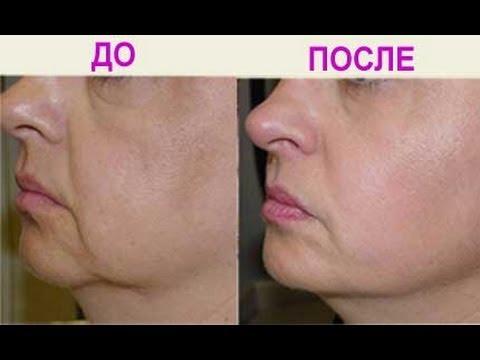 Желатиновые маски для лица: 10 лучших масок из желатина