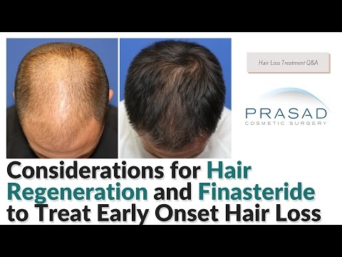 Considerations for Finasteride, and Hair Regeneration to Treat Early Onset Hair Loss
