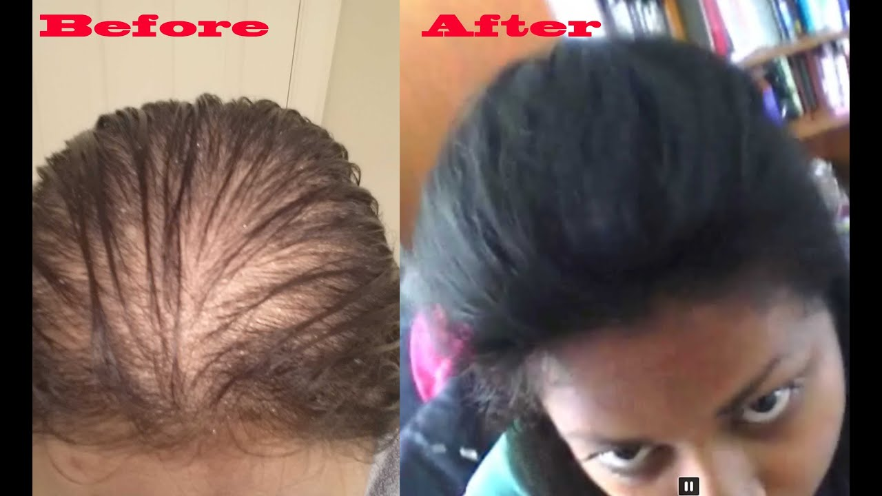 How To Make Thin Hair Look Thicker Using Hair Pieces Youtube