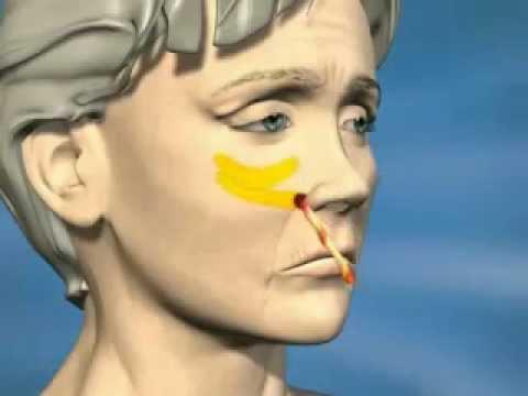 Phẫu thuật căng da mặt, cắt mí mắt