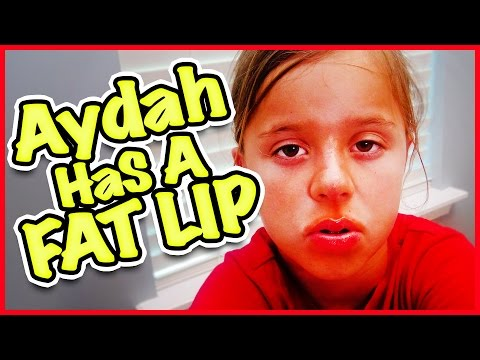 😷 AYDAH GETS A FAT LIP 🍩 AND WE MAKE THE SMALLEST MEAL EVER!!! FAMILY VLOG