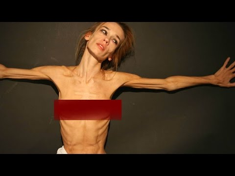 Teen Anorexia, Anorexic and Skinny Models from YouTube · Duration:  1 minutes 36 seconds