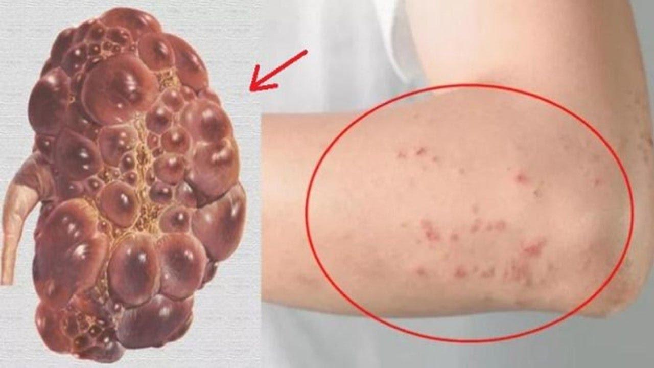 6 señales de que su riñón está en peligro, su cuerpo le avisa! - YouTube