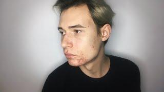 ЧТО С МОИМ ЛИЦОМ Проблемная кожа