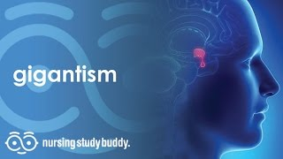 Gigantism - Nursing Study Buddy Video Library