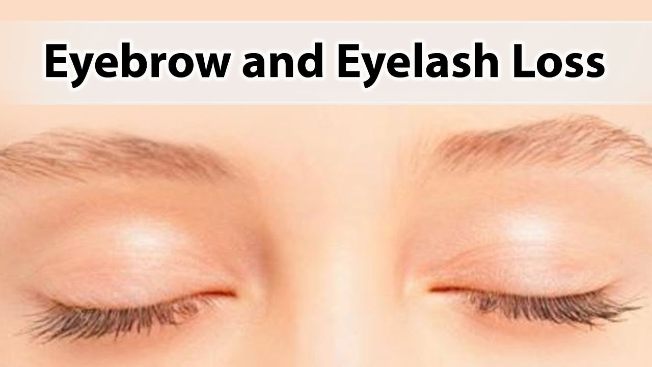Eyebrow And Eyelash Loss Youtube