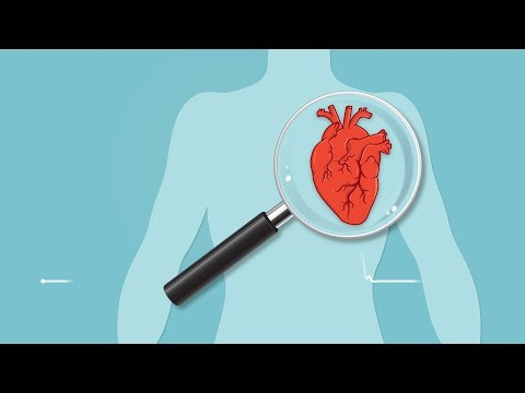 Two- Thirds Of African-American Men May Be At High Risk For Cardiovascular Disease
