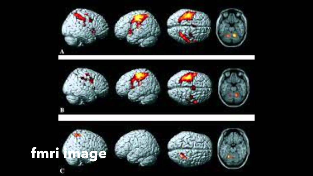 pet scan and fmri rap youtube
