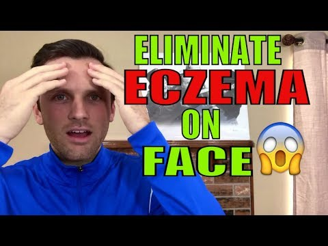 How to get rid of eczema on face