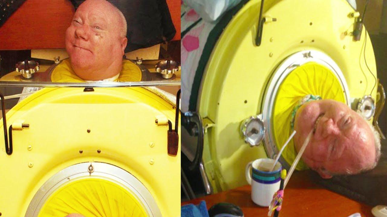 هذا الرجل عاش 60 عام داخل صندوق مقفل - شاهد السبب ..!!
