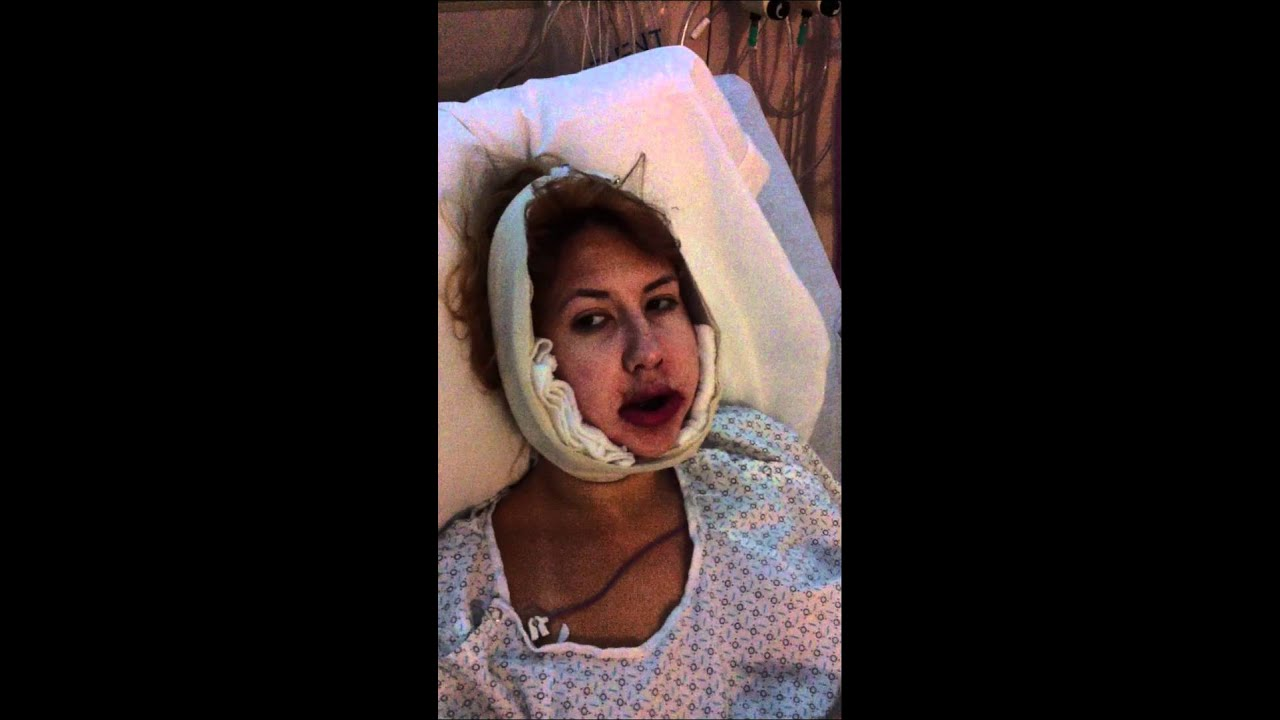 4 Hours After Double Jaw Surgery- DAY 1