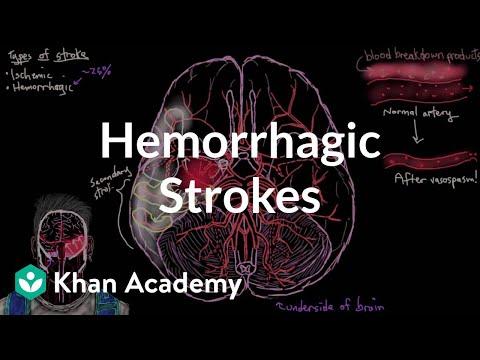 Hemorrhagic strokes | Circulatory System and Disease | NCLEX-RN | Khan Academy