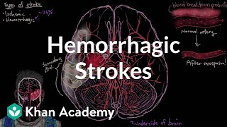 Hemorrhagic strokes | Circulatory System and Disease | NCLEX-RN | Khan Academy