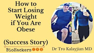 How to Start Losing Weight if You Are Obese • Dr Tro Kalayjian