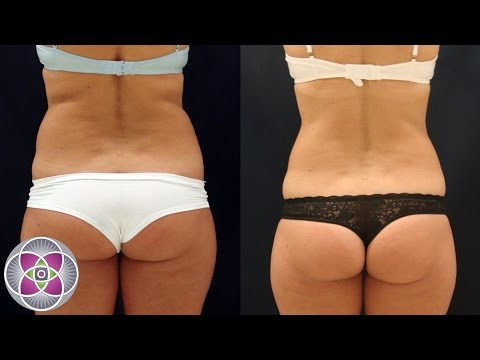 Non Surgical Laser Liposuction Fat Removal & Body Sculpting